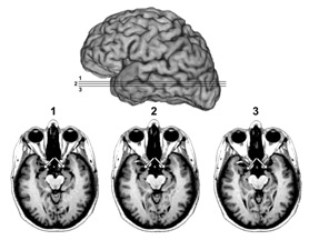 MRI scans of SM's brain. The small arrows around the centre of each image is pointing to black spaces were the amygdalae are absent